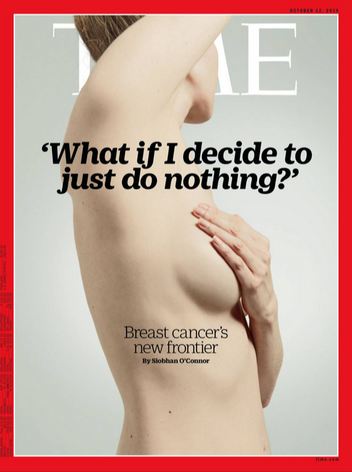 Time_Breast_do_nothing